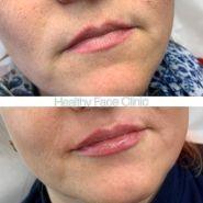 Healthy Face Clinic, клініка здорової краси фото