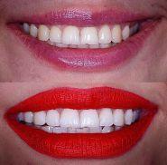 WHITE CLINIC, стоматологія фото