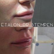 Еталон, центр пластичної хірургії фото