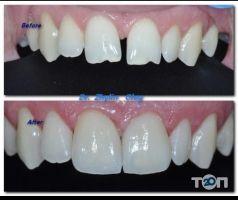 Este dent, клініка мікроскопної стоматології - фото 9