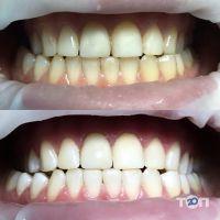 BOGOS, стоматологический центр Оксаны Богонос - фото 10