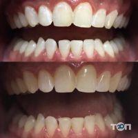 Зубна Фея, центр ортодонтії - фото 10