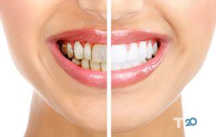 Bionic Dental Clinic біонічна стоматологія - фото 5
