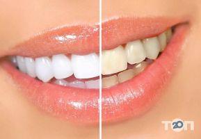 Bionic Dental Clinic біонічна стоматологія - фото 7