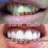 Дент Студія, стоматологія - фото 9