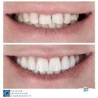 Клініка естетичної стоматології, приватна клініка - фото 11