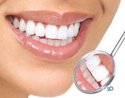 Дент Вайт, стоматологічний кабінет - фото 2