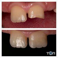 М'ята, студія естетичної стоматології - фото 10