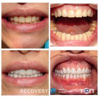 RECOVERY Dental Clinic, стоматологічна клініка - фото 9