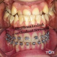 Стоматолог-ортодонт Теслюк Олена Михайлівна - фото 9