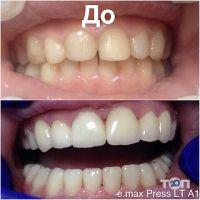 БодіДент, стоматологічний кабінет - фото 6