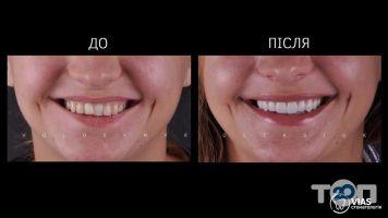 VIAS, стоматологія - фото 2
