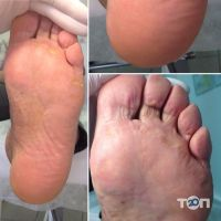 Здорова стопа,клініка - фото 4