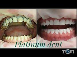 Platinum dent, эстетическая стоматология - фото 2