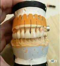 Platinum dent, эстетическая стоматология - фото 8