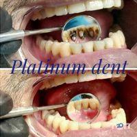 Platinum dent, эстетическая стоматология - фото 9
