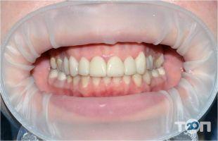 RECOVERY Dental Clinic, стоматологическая клиника - фото 4