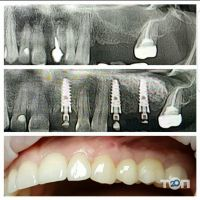 Стоматологическая клиника Мединского И.В. - фото 6