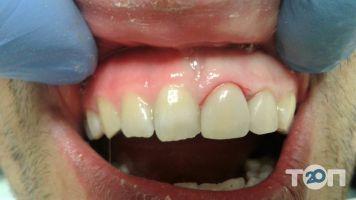 Стоматологическая клиника Назаревыча - фото 2